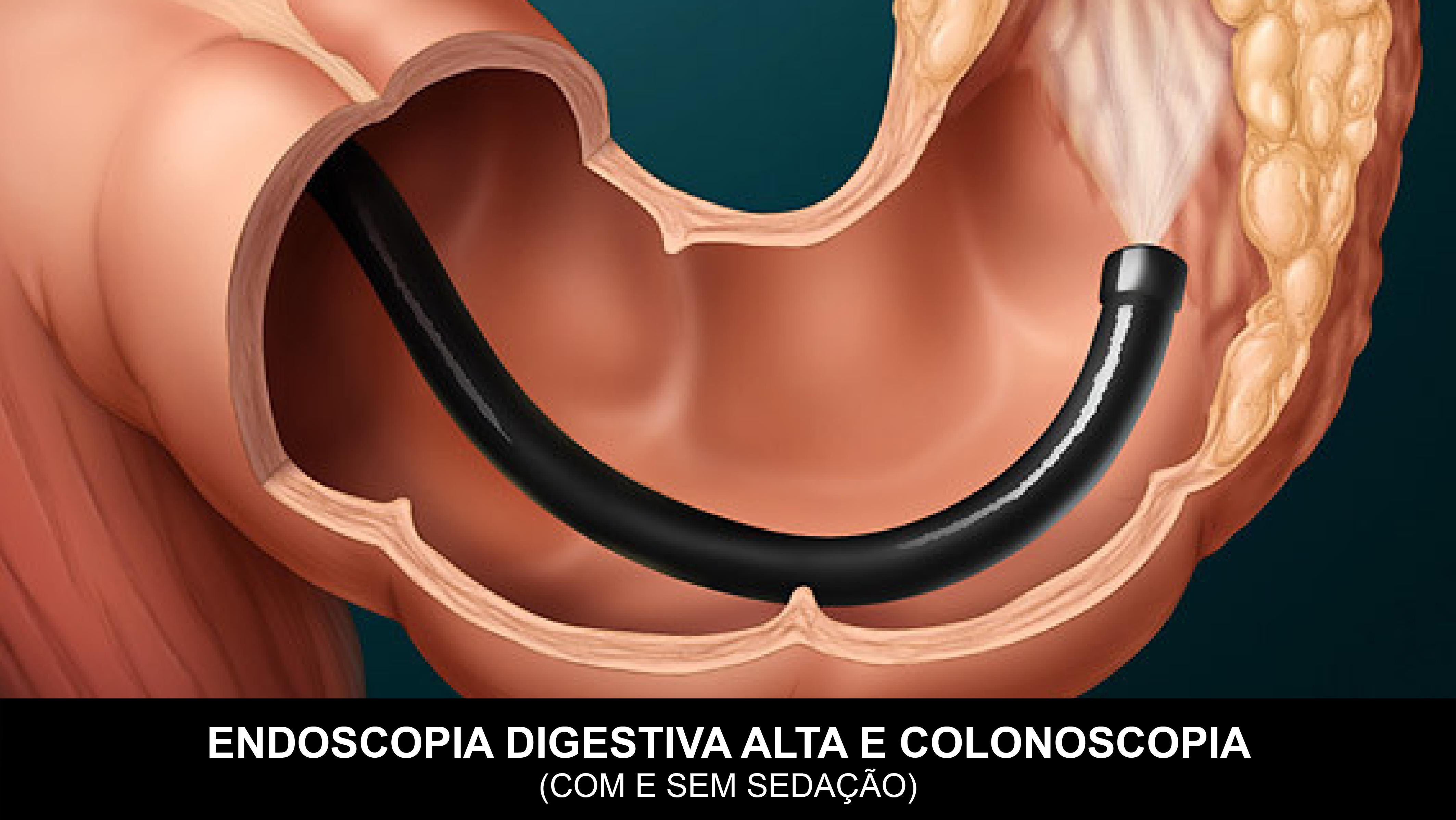 ENDOSCOPIA_COLONOSCOPIA